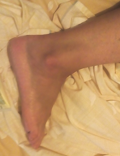 Teyla's foot injury